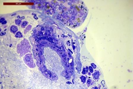Гистологический срез: бокаловидные органы (Peltogaster paguri) проникают в нервный ганглий хозяина (Pagurus pubescens) © A. Miroliubov et al./ Scientific Reports, 2020