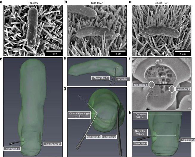 Анализ поперечных срезов E.coli