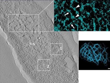Бактерия Pseudomonas aeruginosa, зараженная бактериофагом phiKZ на поздних стадиях инфекции. Изображение получено методом электронной томографии © Danilova et al./Viruses, 2020