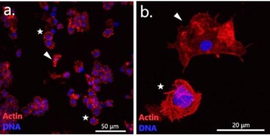 Визуализация клеток крови (гемоцитов) мидии, страдающей диссеминированной неоплазией. Раковые клетки отмечены звездочками. © Пресс-служба СПбГУ