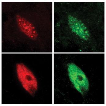 Ядра растительных клеток видны до и после воздействия тени