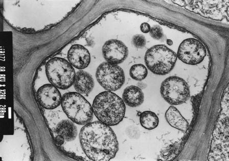 Phytoplasma в клетке флоэмы растения © Jana Franova