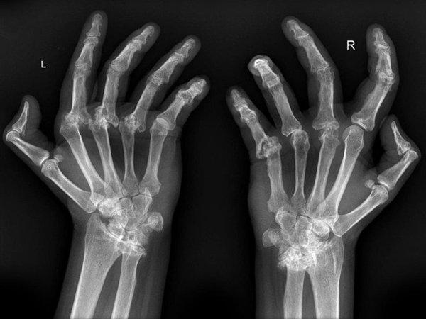 Rheumatoid-hands