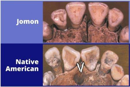 Визуальное различие зубного ряда, типичного, соответственно, для представителей населения Дзёмон и коренного населения Америки (у последних центральные резцы сближены и развёрнуты относительно оси) © Taylor & Francis Group